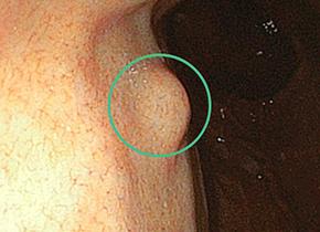 胃粘膜下腫瘍