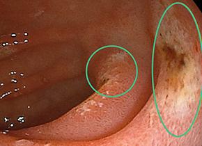 十二指腸潰瘍