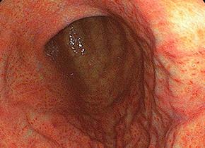ピロリ菌感染性胃炎