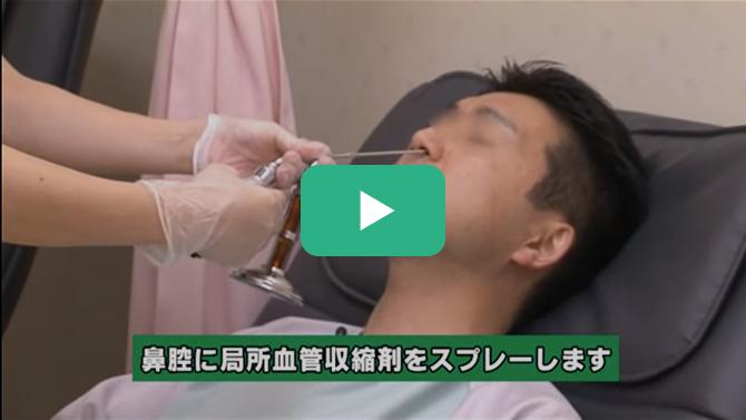 経鼻胃内視鏡検査(鼻から挿入)